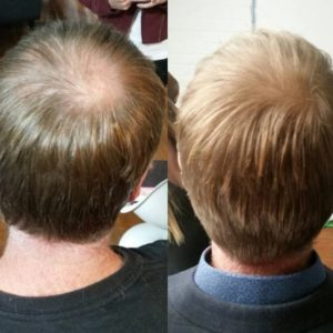 Micro Bonding for thinning hairlines